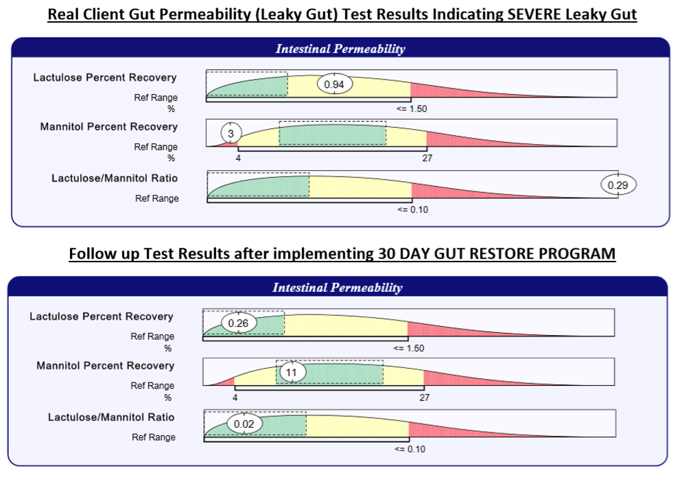 "This is a before and after of the Genova Intestinal Permeability test for a real client, which demonstrates how effectively this program can heal ""leaky gut"".  She was able to drastically improve her intestinal permeability and reduce many of her unwanted symptoms!"