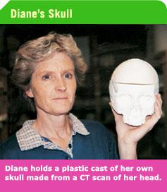Diane_holds_plastic_cast_of_her_head.jpg