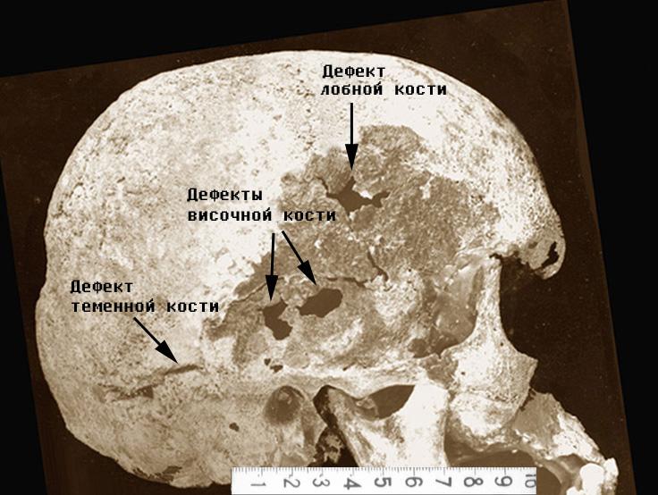 Общий вид дефектов лобной, височной и теменной костей на черепе Николая II.