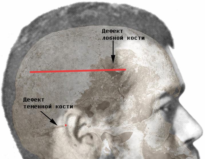 Сопоставление «лобно-теменной» раны с дефектом лобной кости и ушной раковины с полосовидным дефектом теменной кости методом наложения.