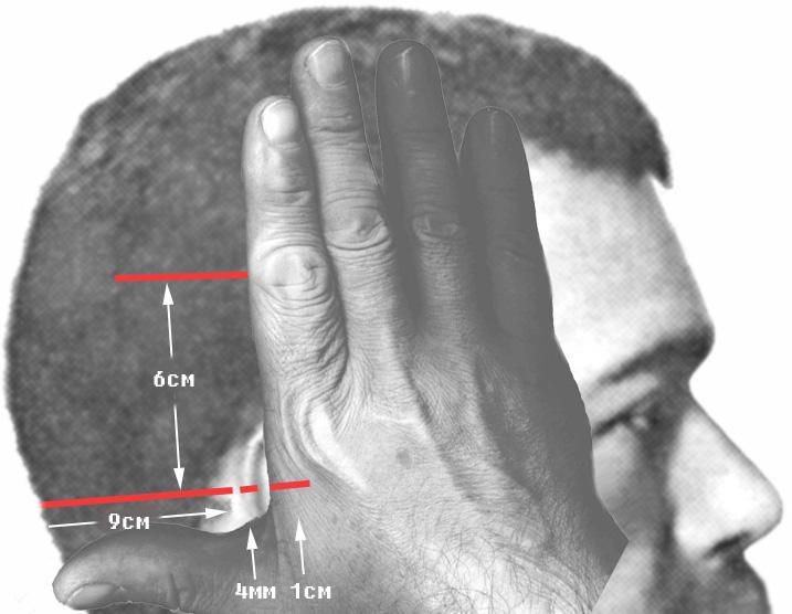 Второй удар меча. Одномоментное образование «затылочно-теменной» раны, раны на краю правой ушной раковины и тыле правой кисти.