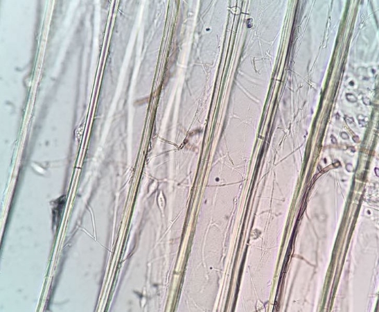"""At 400X magnification,a well-defined network of """"root-like""""wood decay hyphae are visible in nearly every wood cell in the image above. This is the incipient stage of wood decay which can only be seen microscopically and which can result in significant strength loss."""