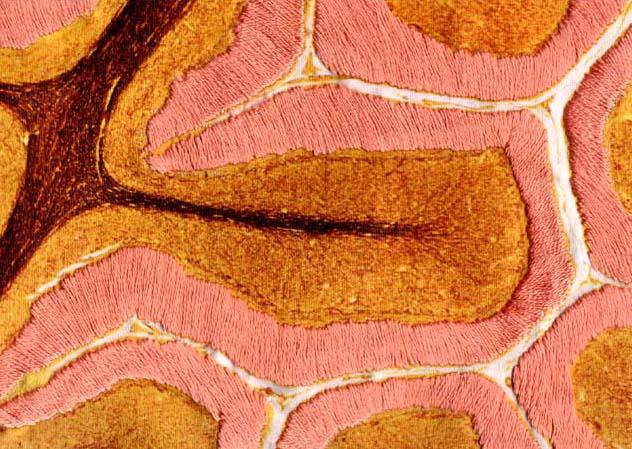 Cerebrum (detail)