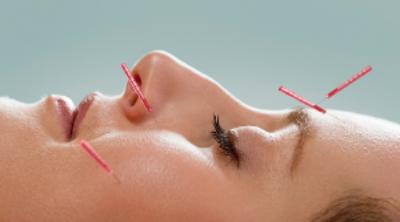 smcll facial acu needles