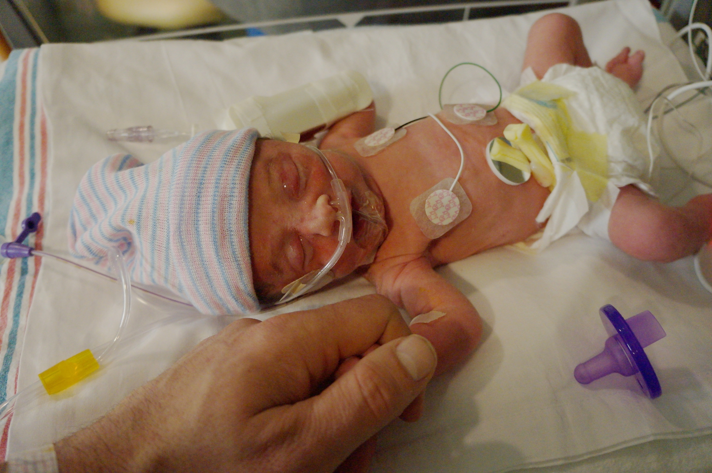 Beau's first day in the NICU, born 7 weeks early.