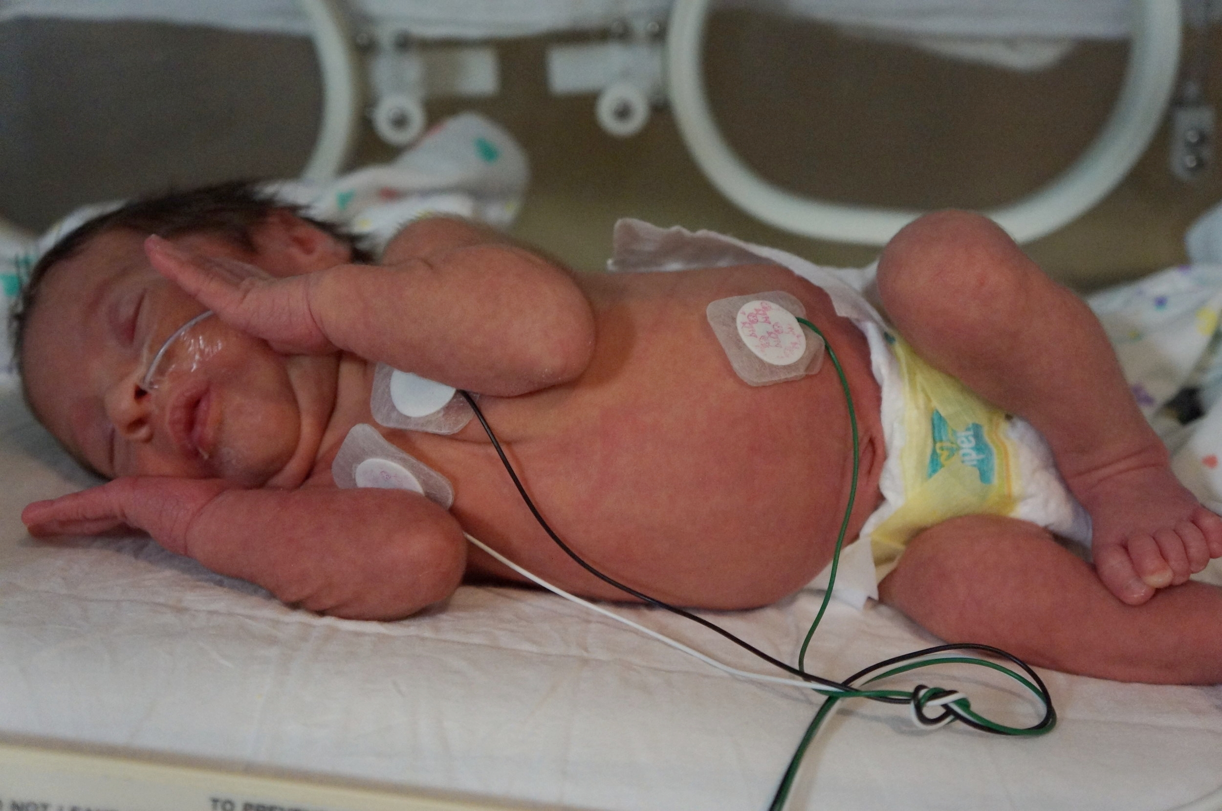 Beau with his leads and feeding tube in the NICU. The nose tube was a big improvement over the one they originally had in his mouth. At this point, he was also off of oxygen and no longer required an IV.
