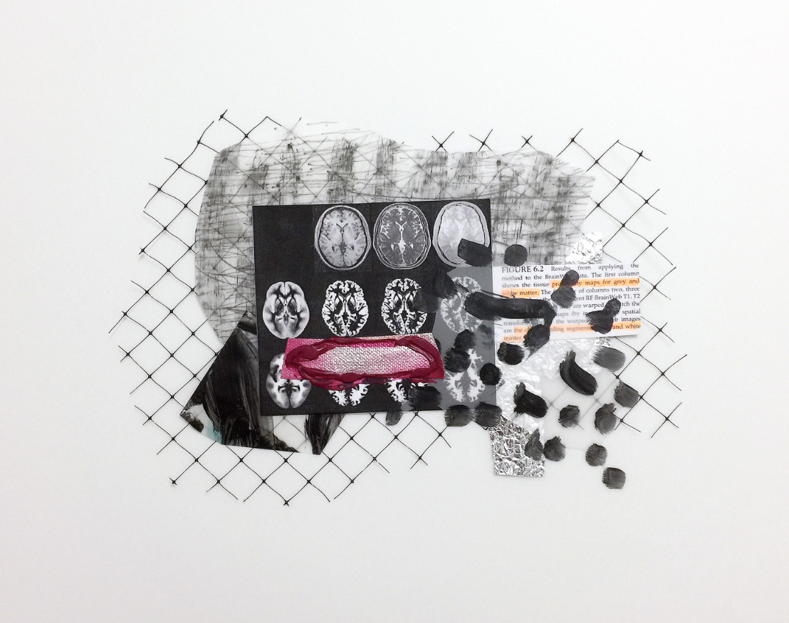 Brain Image Project, 2016  Acrylic Painting on Acetate Film  14*17 inches/35.5*43.2cm