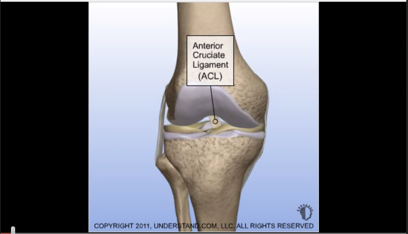 Click here for the following animation : Torn ACL - Anatomic Footprint ACL Reconstruction