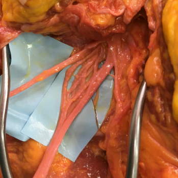 Sciatic Nerve Intercommunications: New Finding   New finding may help explain unusual neurologic examinations and alert the surgeon as to the potential for encountering such connections at operation.