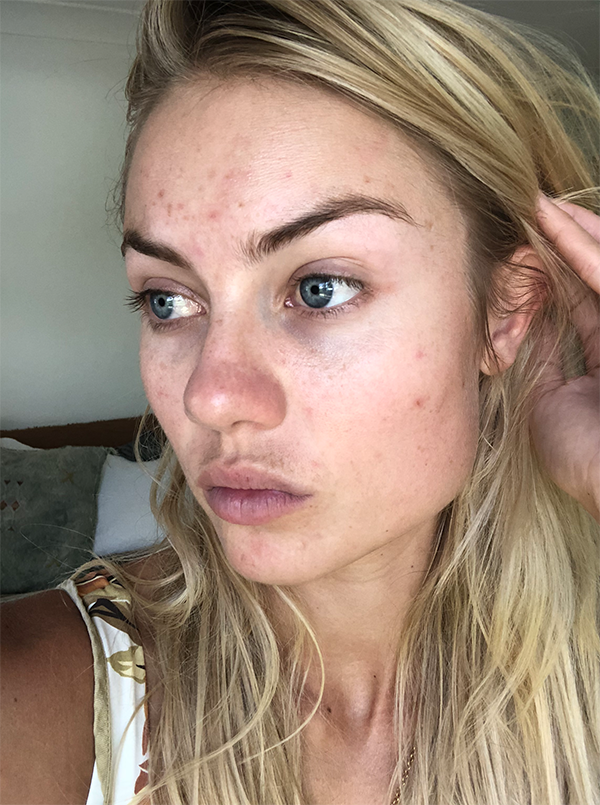 Elyse Knowles Skin Update May 2019 6.png