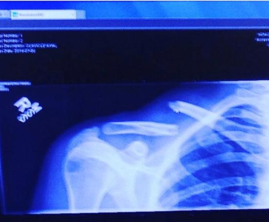 Ashley Jones Broken Collarbone