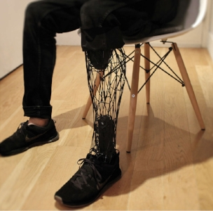 AN EXAMPLE OF A 3D PRINTED PROSTHETIC LIMB