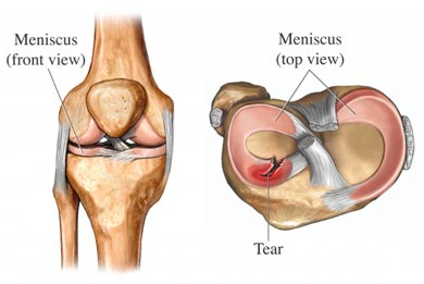 Sloane Stecker Physical Therapy New York City Meniscus