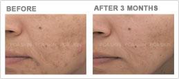acne-with-post-inflammatory-hyperpigmentation-sm.jpg