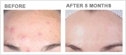acne-sun-induced-hyperpigmentation-sm.jpg