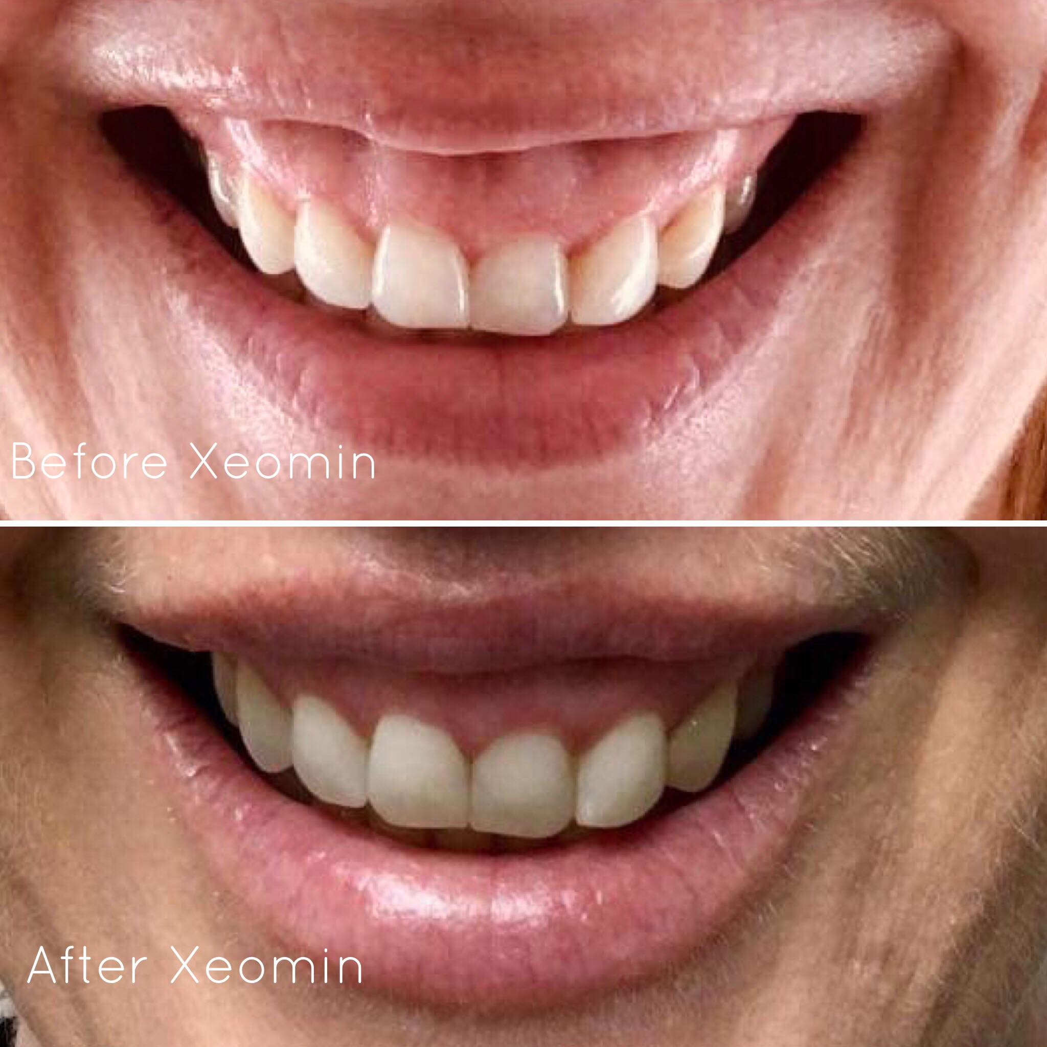 Xeomin® used to improve a gummy smile - *Please note results will vary between individual patients.