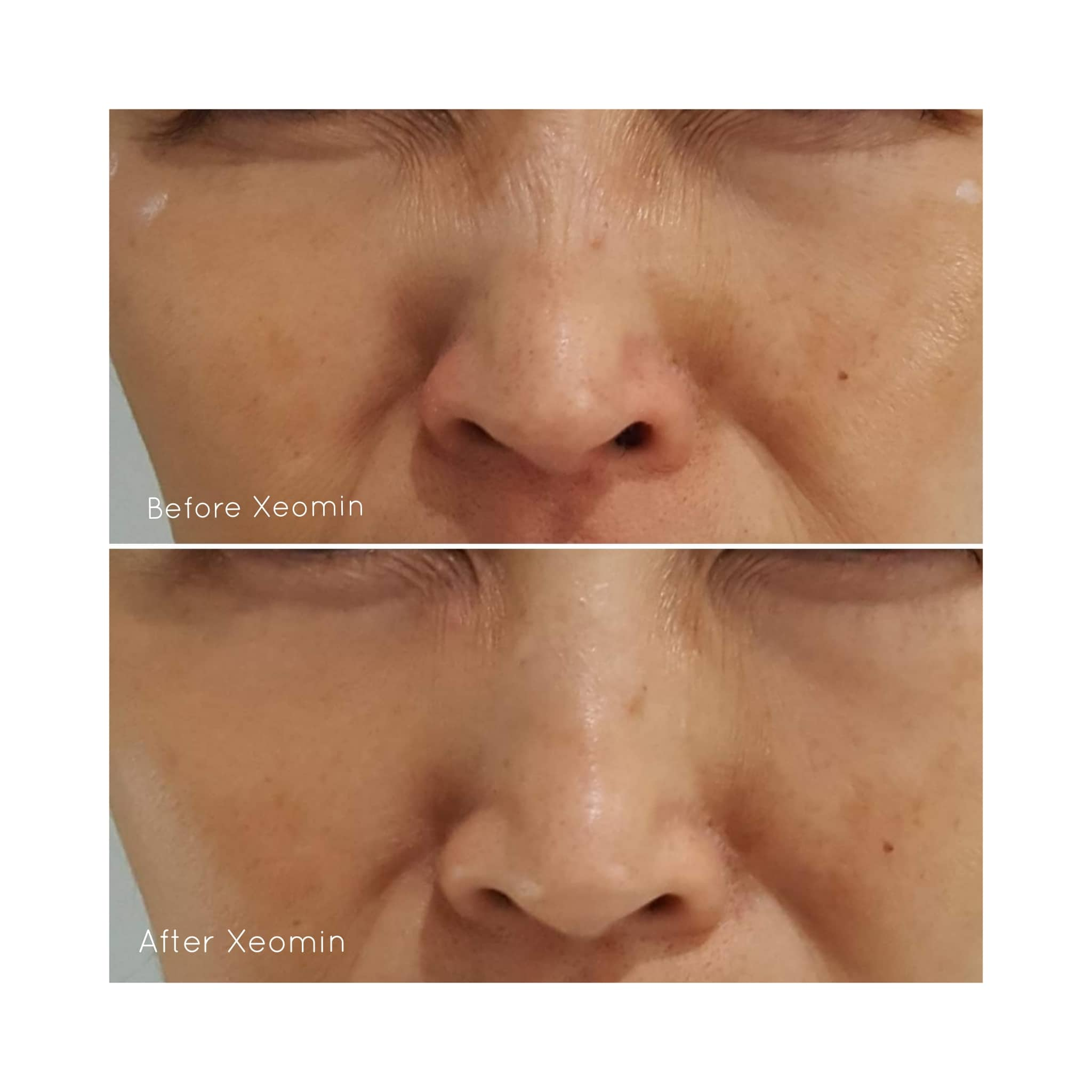 Xeomin® used to soften bunny lines (creases across the nose) - *Please note results will vary between individual patients.