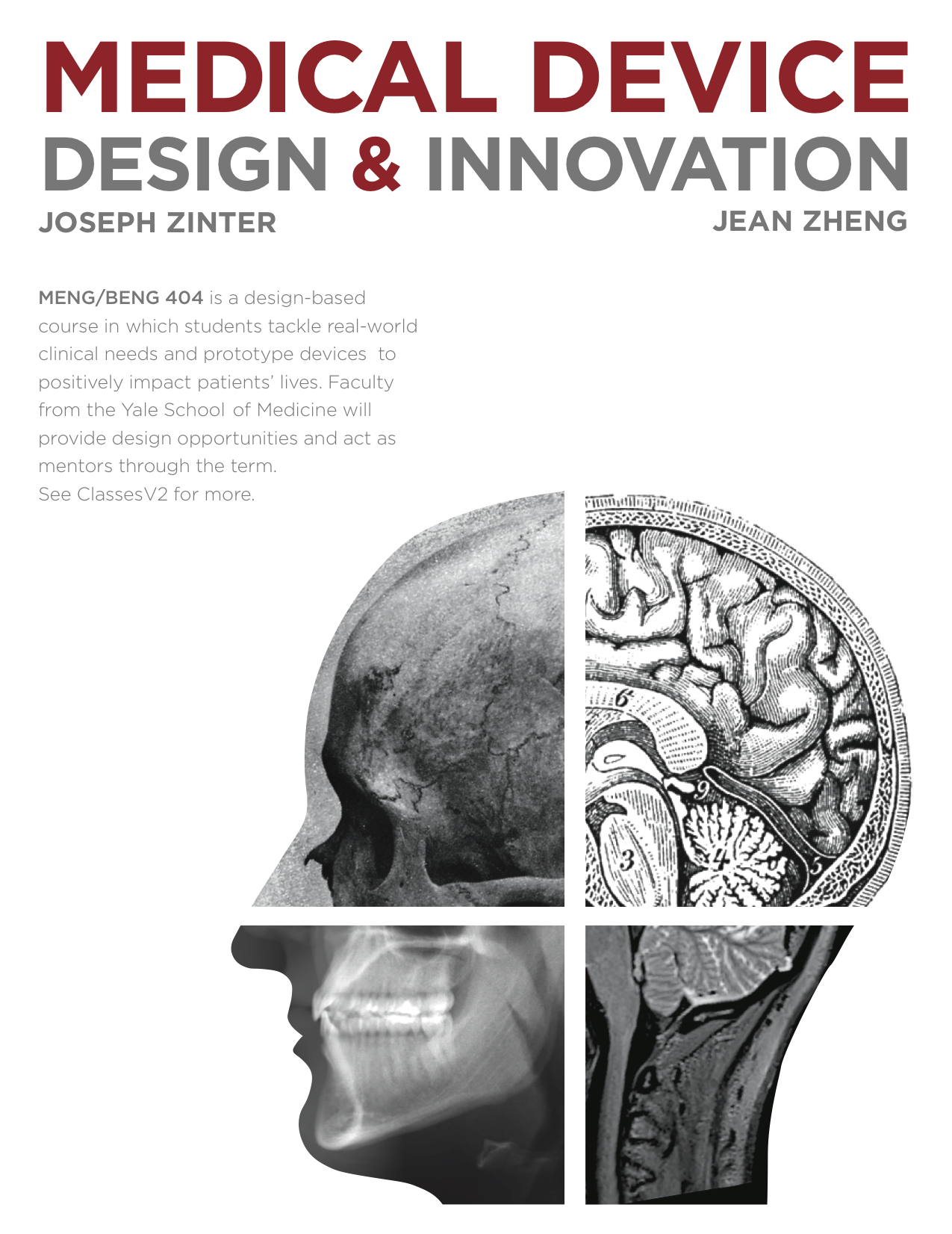 """Copy of Poster design for course, """"Medical Device Design and Innovation"""""""