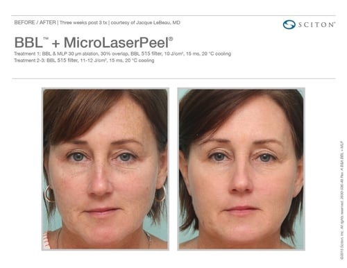Cosmetic Laser Treatment — Swan Dermatology & Aesthetics