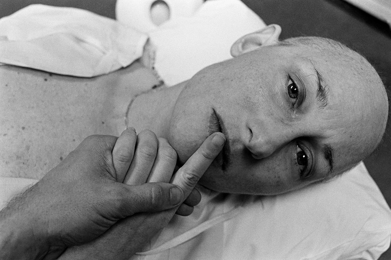 Final treatment  Boston Hospital for Women Boston, MA. 1979