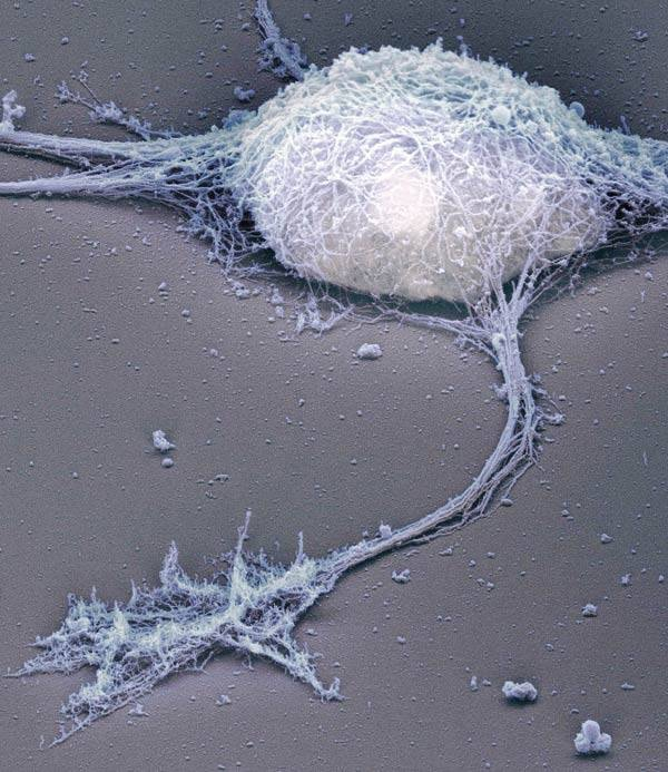Nerve cell surrounded by fascial tissue