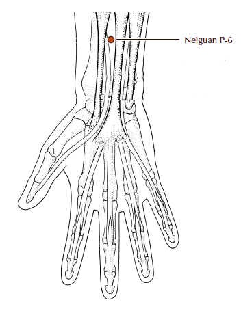 P6 - Pericardium 6, Nei Guan : On the forearm, between the two tendons that start from the wrist and run down the center of the forearm. Turn your palm up and locate the point about 3 fingers width down from the wrist. This point calms the spirit, unbinds the chest, and can help with insomnia and nausea.