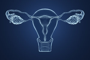 Addressing PCOS- Polycystic Ovarian Syndrome