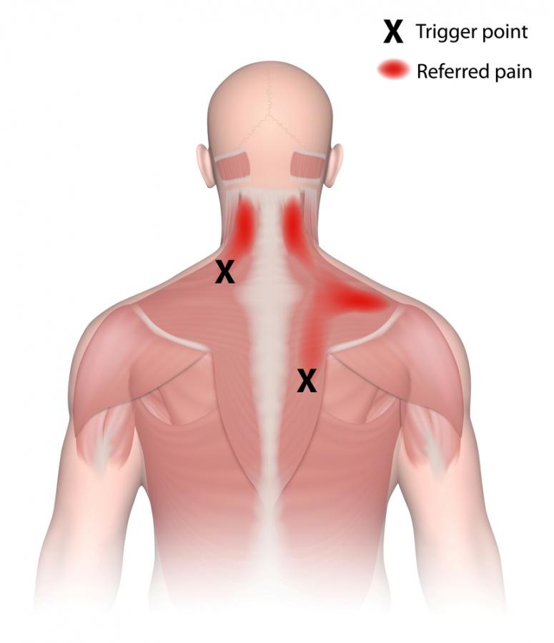 trigger-point-referred-pain-shutterstock_228843211.jpg