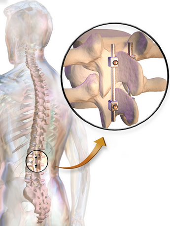 Back surgery is expensive and invasive.