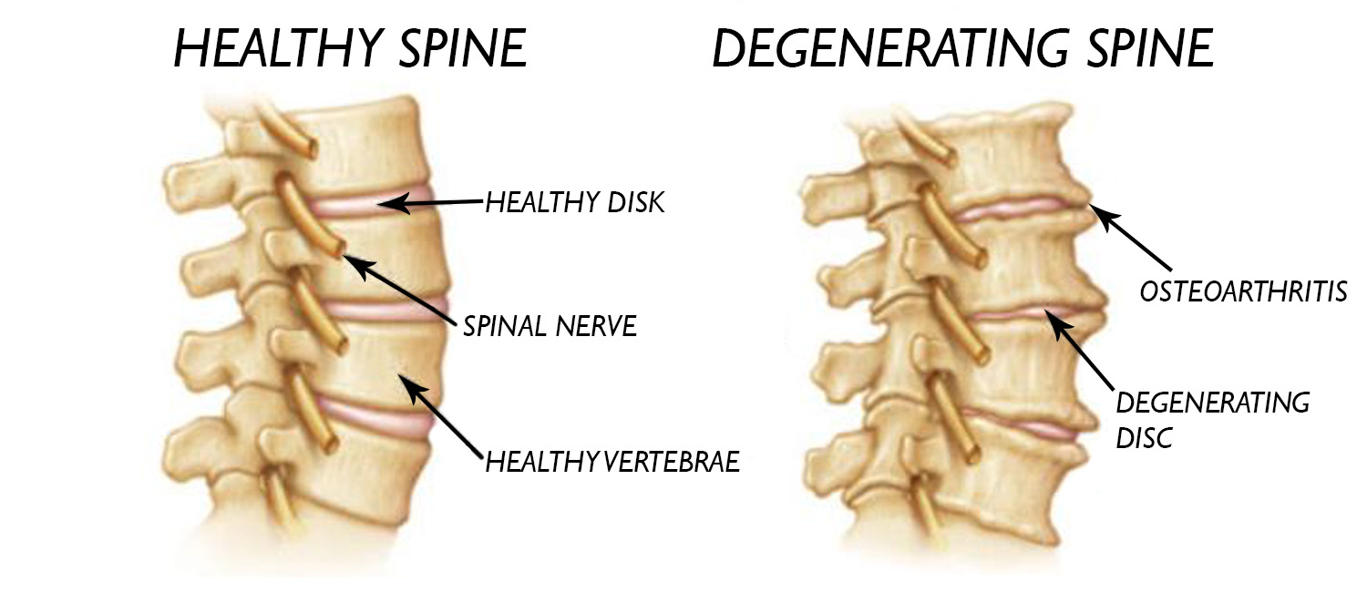 All the nerves in your body come from the skull and spine. It is important to keep it healthy.