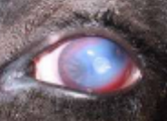 Pinkeye | Manage, Treat, Prevent -