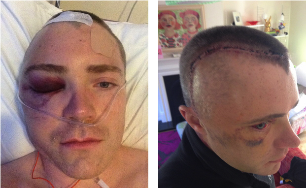 Post brain operation - February 2014