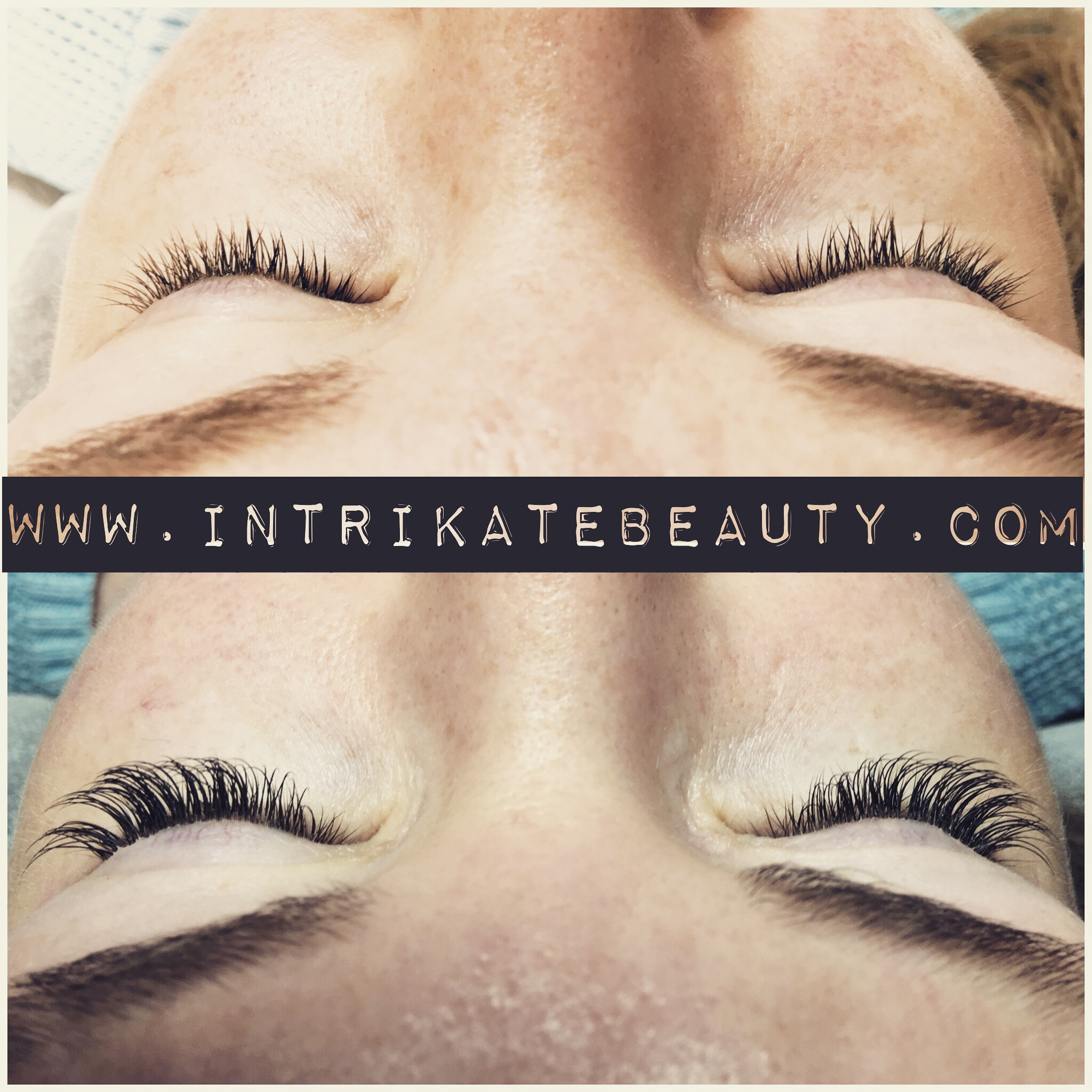 before and after Xtreme Lashes®