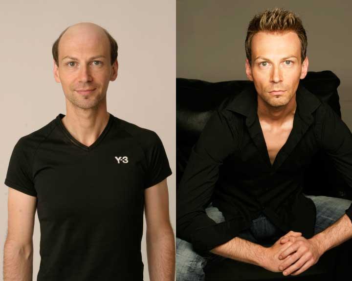 gustav's amazing hair replacement transformation