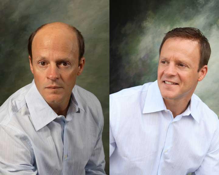 josh's amazing hair replacement transformation