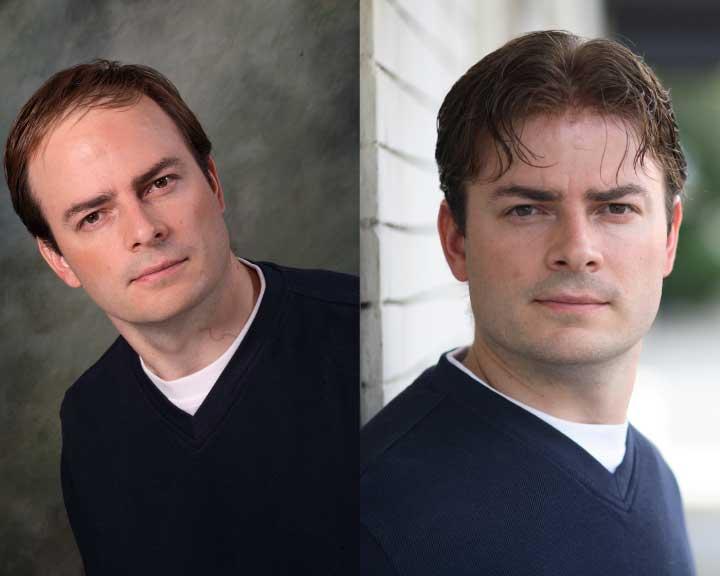 derek's amazing hair replacement transformation
