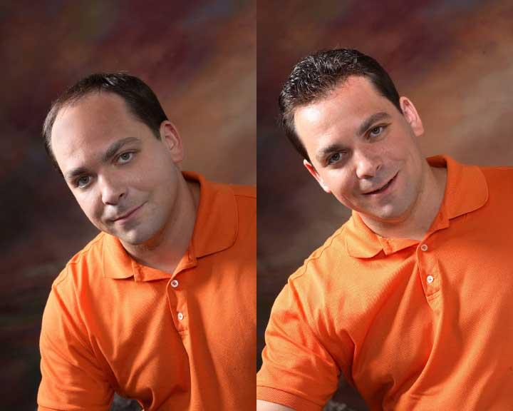 ken's amazing hair replacement transformation