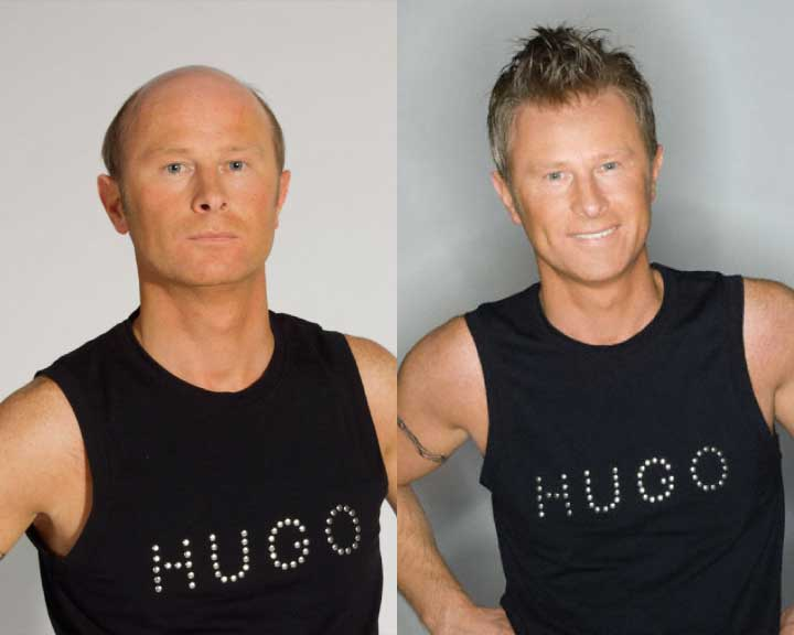 hugo's amazing hair replacement transformation