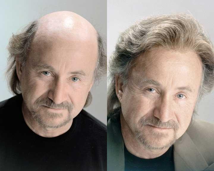 scott's amazing hair replacement transformation