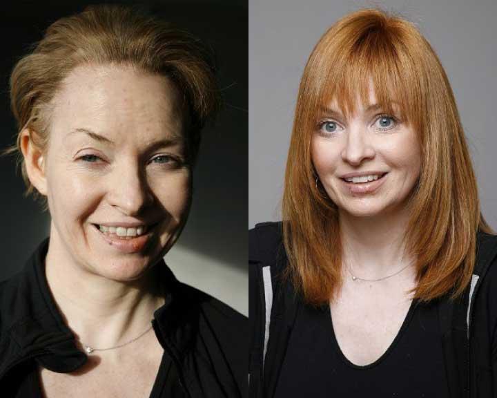 ann's dramatic hair loss transformation