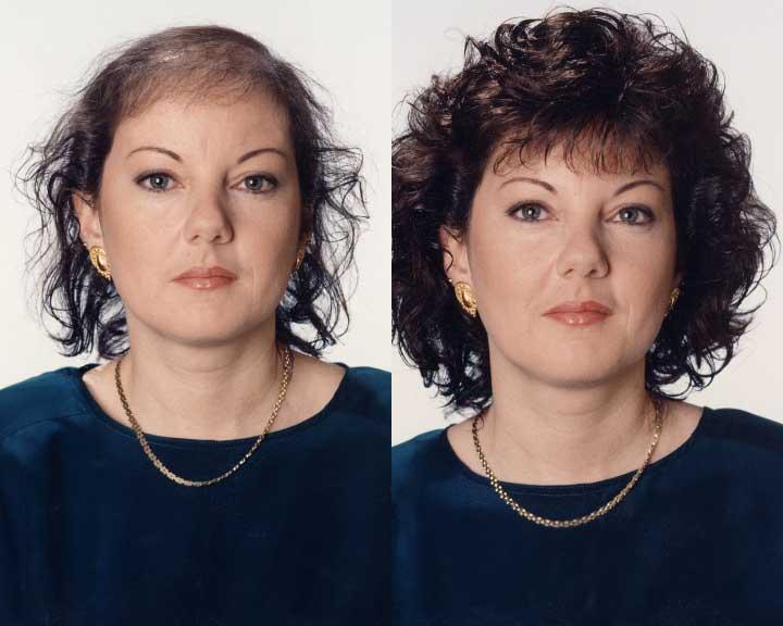 sienna's dramatic hair loss transformation