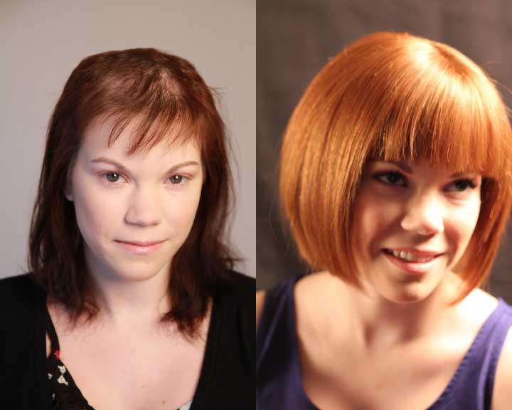 kim's dramatic hair loss transformation