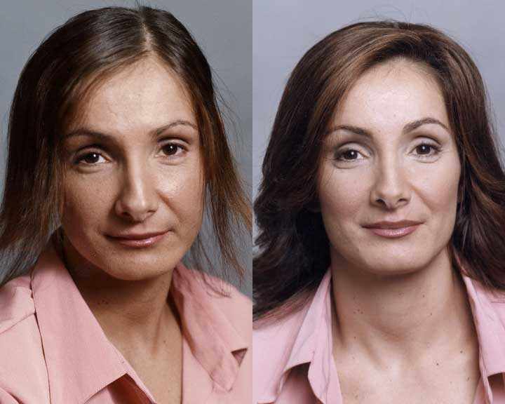 paige's dramatic hair loss transformation