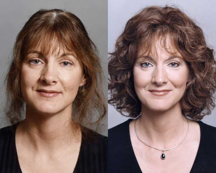 carly's dramatic hair loss transformation