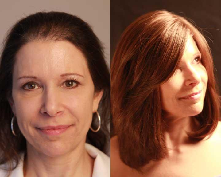 charlotte's dramatic hair loss transformation
