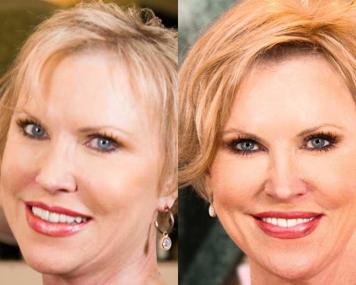 sandy's dramatic hair loss transformation