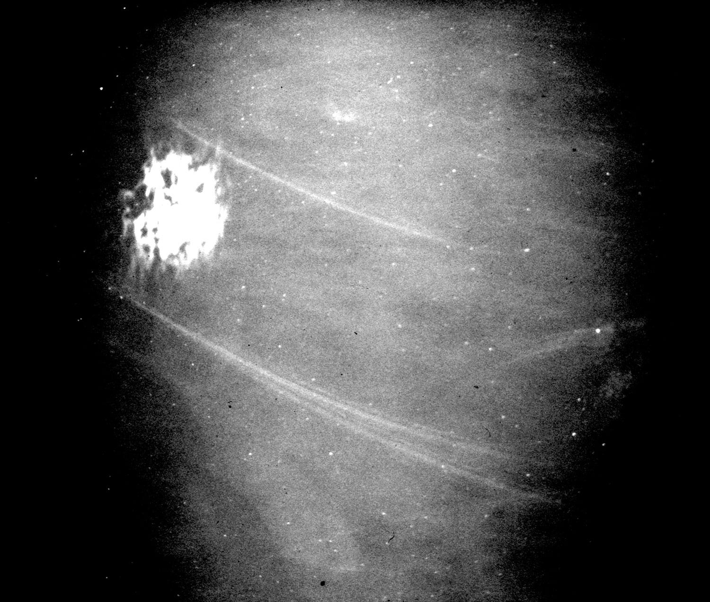 inner orbit