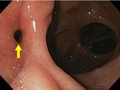 Endoscopic view of GGF (Arrow)