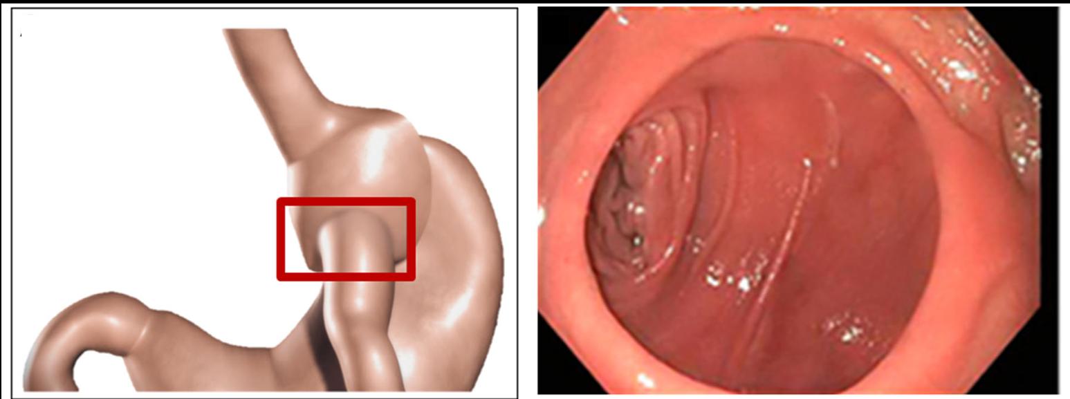 Dilated gastro-jejunal anastomosis leads to increased reservoir size -  Vargas et al (2017)