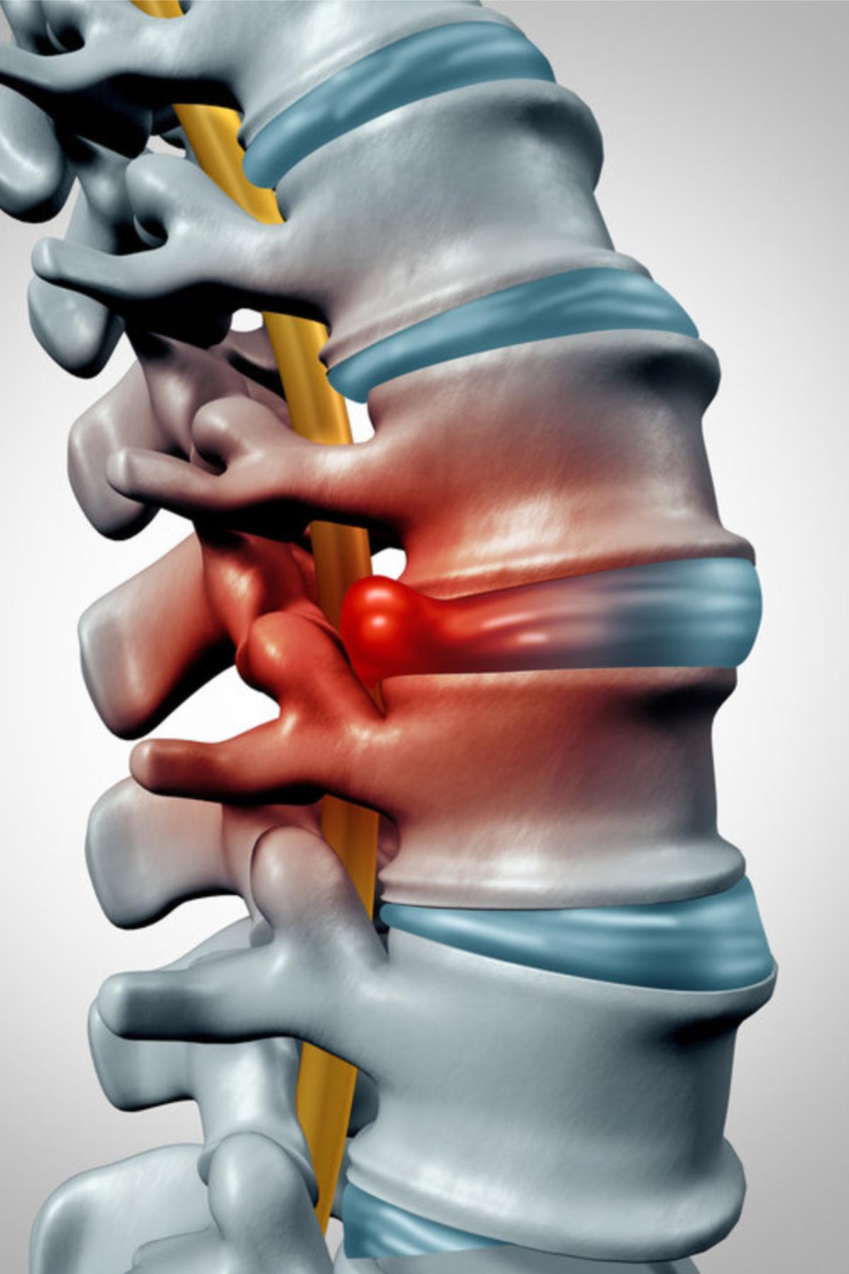 Smerter i ryggen med smerteutstråling i benet kan skyldes skiveprolaps. Om dette skulle oppstå er det en fordel at du undersøkes raskt og grundig, slik at en riktig diagnose stilles, og tiltak iverksettes.